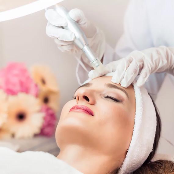 Micro Needling, Anti Aging, Behandlung, Frankfurt, Gesicht, Hals, Dekollete, Schwangerschaftsstreifen